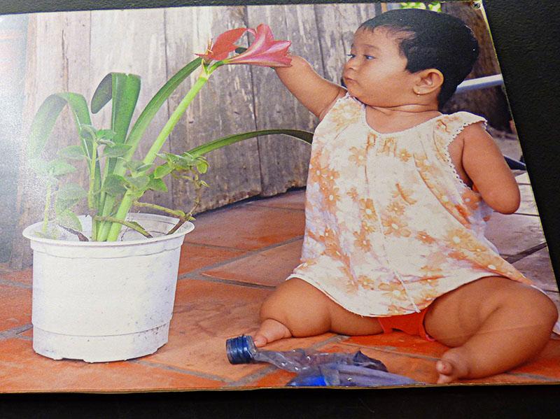 Niña nacida en 2008 sin extremidades. Efectos secundatios del agente naranja